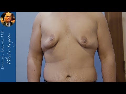 BIG BOY GYNECOMASTIA GLANDS ➕100 LB Weight Loss, HI-DEF VaserLipo CHEST Surgery By Dr. Lebowitz
