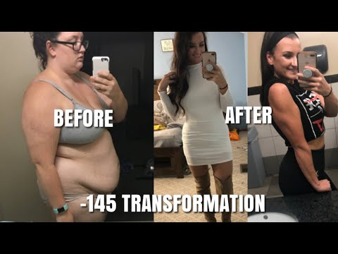 -145-pound-weight-loss-transformation.-before-and-after-photos/videos