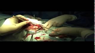 Операция по удалению опухоли у собаки (овчарка) (Клиника доктора Сотникова)