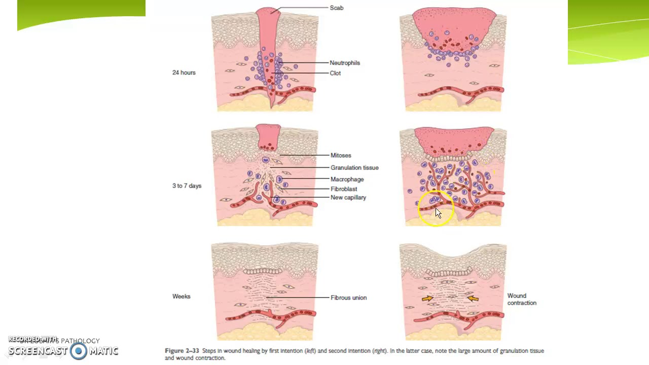Download Wound healing and repair (part 1)- Cutaneous wounds healing