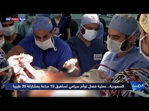 السعودية.. سجل حافل من النجاحات لعمليات جراحية لفصل توأم سيامي  - نشر قبل 36 دقيقة
