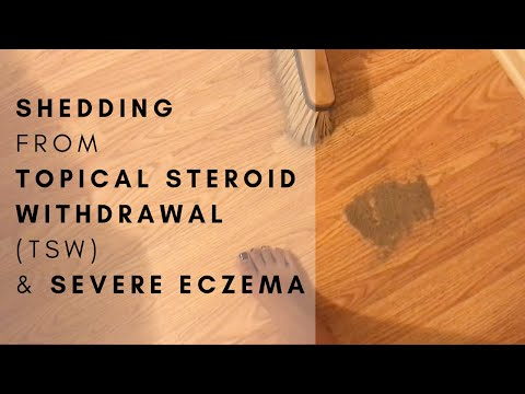 Healing Topical Steroid Withdrawal (TSW) & Severe Eczema | The Nat Nurse