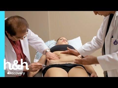 Haciendo cuatro cirugías en una sola vez - A la Medida l Discovery Channel