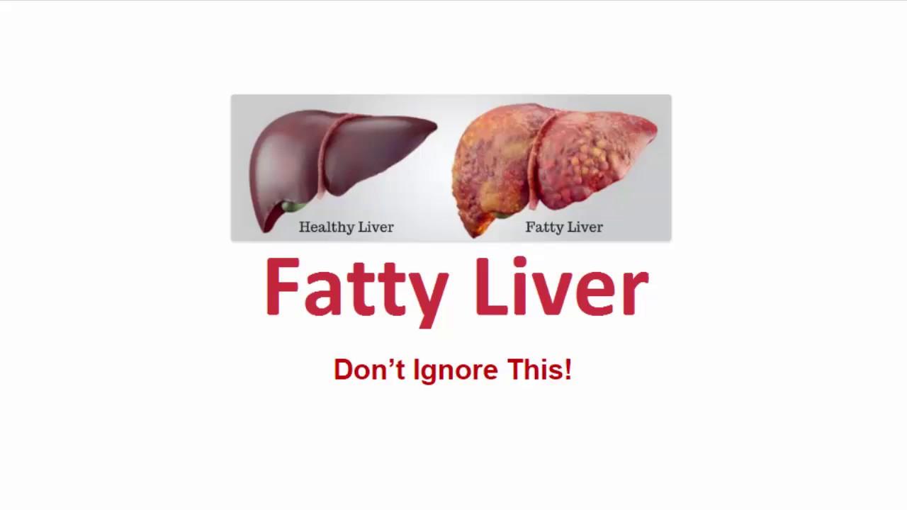 The Reverse Your Fatty Liver Program Review - Fix The Root Cause Of Your Fatty Liver - YouTube
