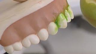 Как почистить зубы без зубной щетки?