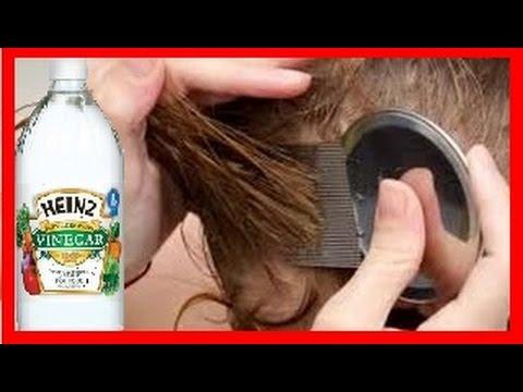 como usar vinagre para eliminar piojos