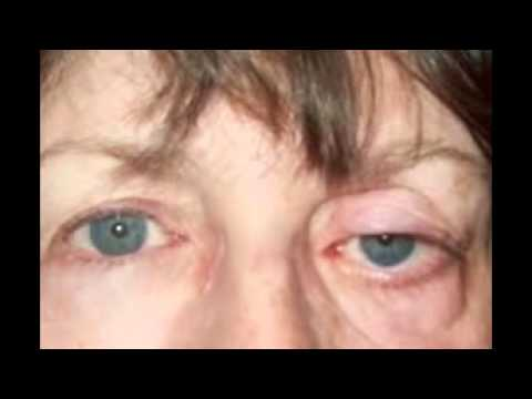 allergy eyes pictures