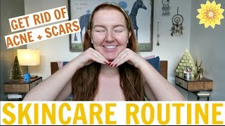 SKINCARE ROUTINE | HOW TO GET RID OF ACNE + SCARS | MEGHAN HUGHES