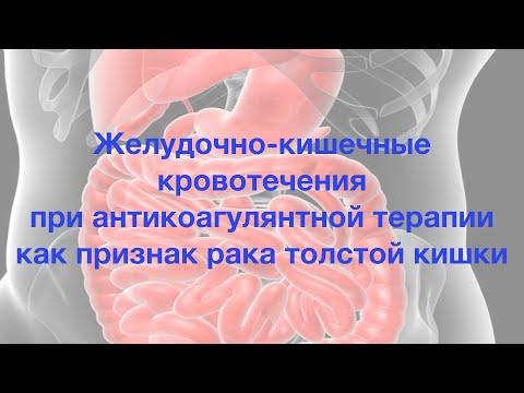 Желудочно кишечные кровотечения при антикоагулянтной терапии как признак рака толстой кишки