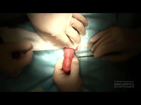 Женское обрезание, что это? Читайте, смотрите фото