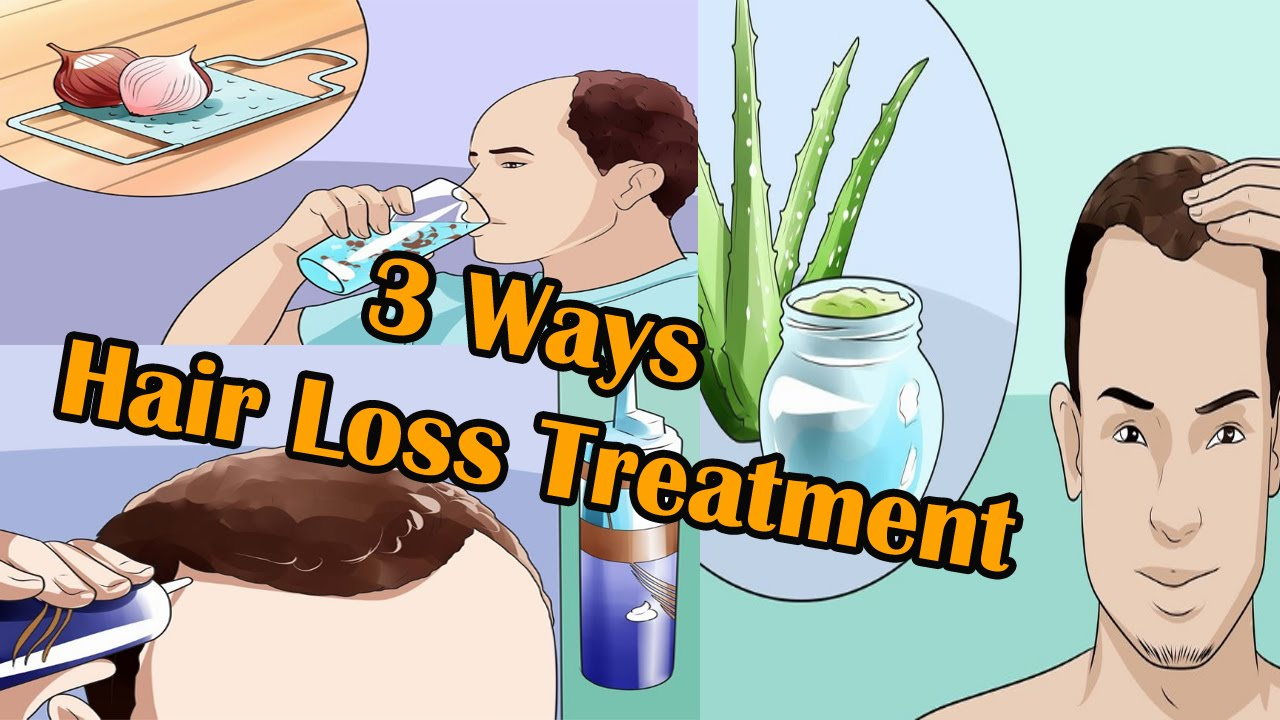3 Ways to Hair Loss Treatment For Men I Male Pattern Hair Loss  YouTube