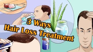 3 Ways to Hair Loss Treatment For Men I Male Pattern Hair Loss