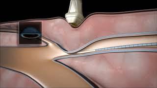 Periferica vascular es la que cirugia