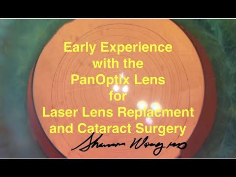 Best Lens For Cataract Surgery 2020.The Panoptix Lens For Laser Lens Replacement And Cataract Surgery A Review Shannon Wong Md