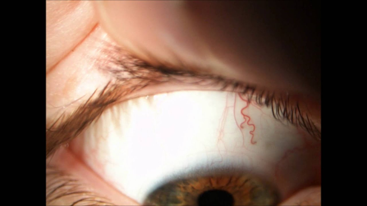Contact Lenses Scl Assessment Of Fit Removal Youtube