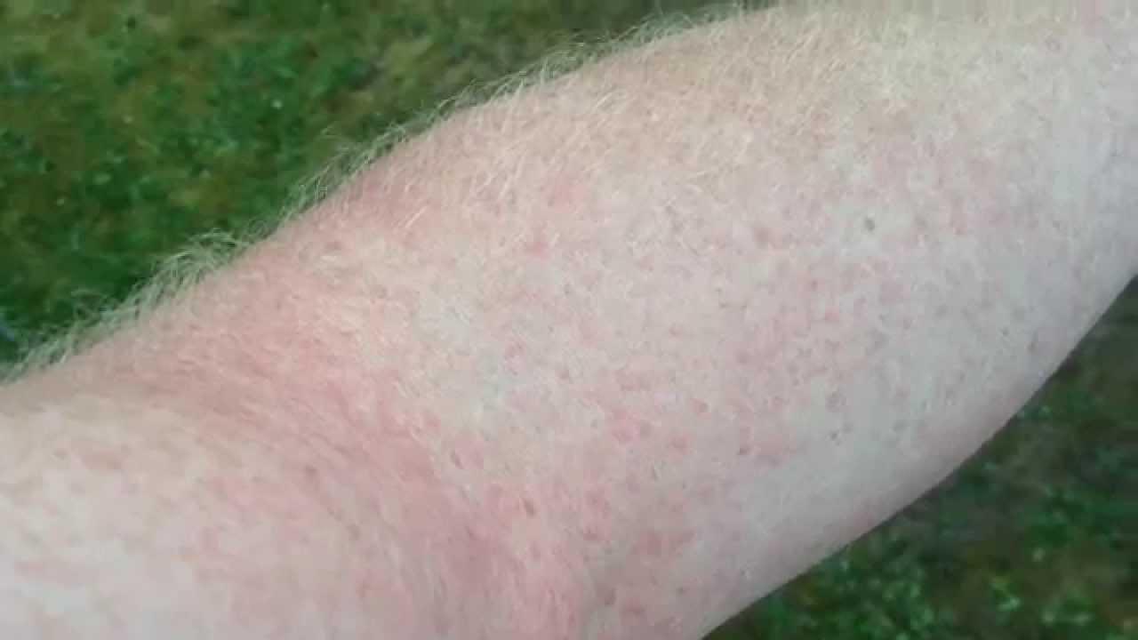 how to get rid of fiberglass rash