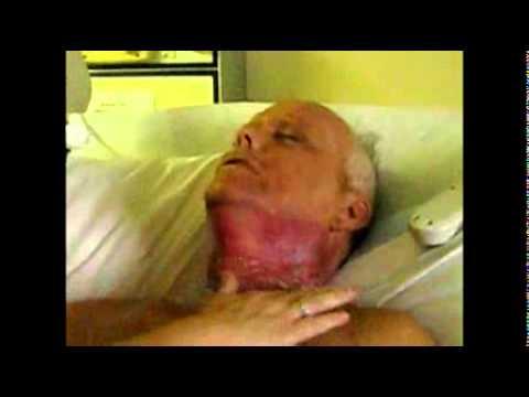 № 32 Ролик рак горла Бросить курить
