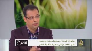 هذا الصباح- الدكتور عقبة القاسمي يتحدث عن حشوات الأسنان