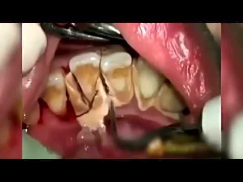 Begini Cara Dokter Membersihkan Karang Gigi Youtube