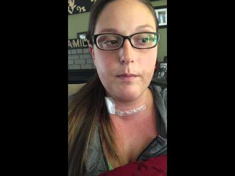 Thyroidectomy Surgery Recovery