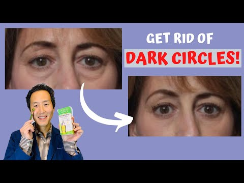 How Do I Get Rid of Under-Eye Circles Without Surgery? Dr. Anthony Youn