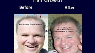 Latest Hair Loss Research : Stem Cell Therapy and Stem Cell Nutrition for Hair Loss