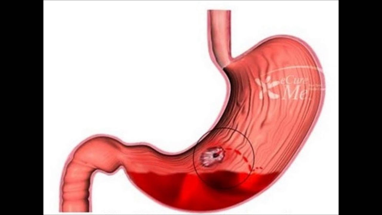 upper gastrointestinal bleeding - cause and management - youtube, Skeleton