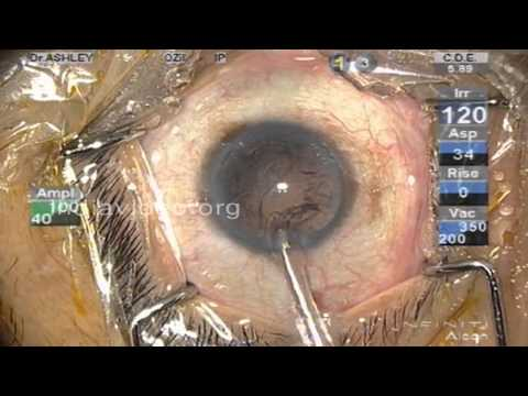 Micro Cataract Surgery (full video)