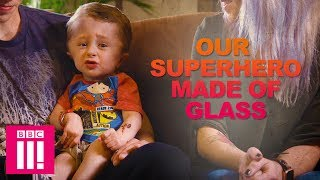 Baixar Our Fragile Superhero Son Who Can Break Like Glass | Living Differently