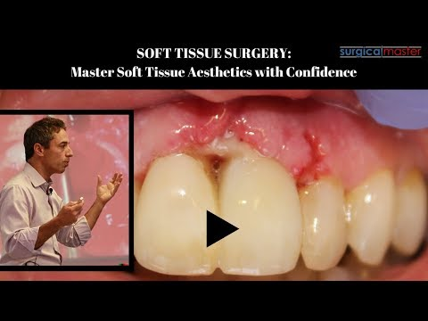 Soft Tissue Surgery: Master Soft Tissue Aesthetics with Confidence