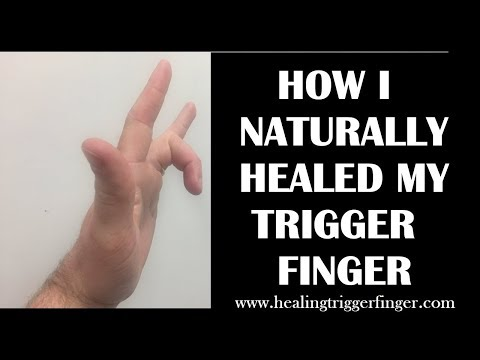 How I Healed My Trigger Finger Naturally