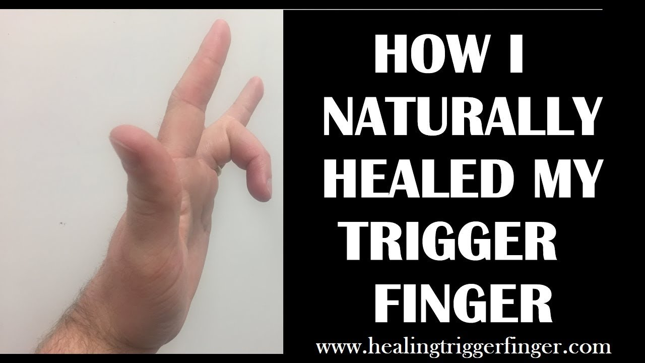 How I Healed My Trigger Finger Naturally - YouTube