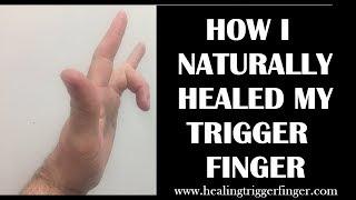 How I Healed My Trigger Finger Naturally