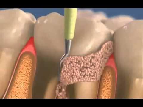 Болят зубы? Все болезни зубов и их причины.