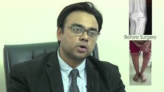 Dr Salman Durrani - Success Story Knee and Spine Surgery.