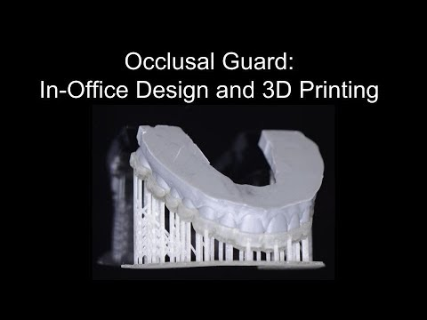 Digital Occlusal Guard: Using BlueSkyPlan, Meshmixer, and Mo
