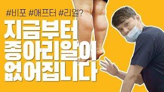 [예쁜다리 만들기 2탄]종아리보톡스 시술기~