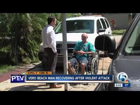Indian River County man beaten and carjacked slowly recovering