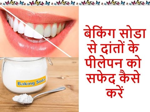 Home Remedies For Teeth Whitening ब क ग स ड कर ग