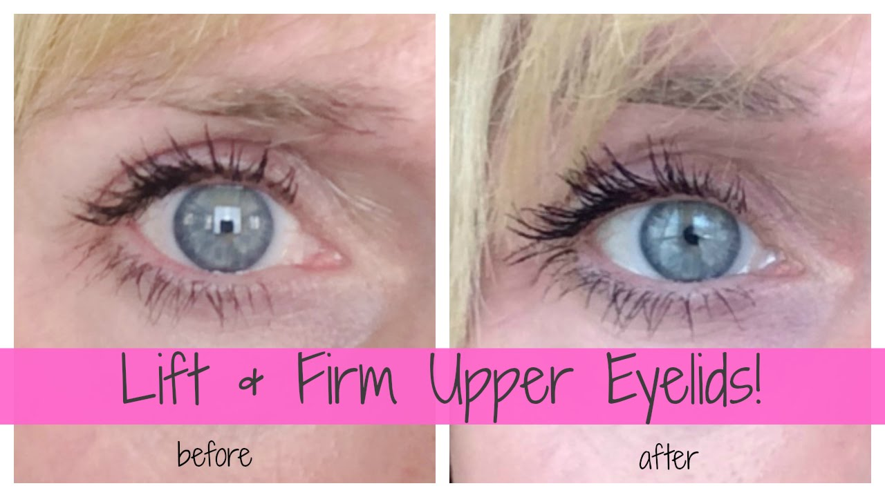 Lift Firm Upper Eyelids At Home Improve Hooded Mature Eyes Youtube