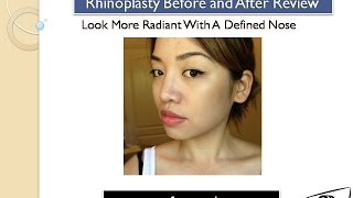Rhiniplasty before and after review | My Face Color