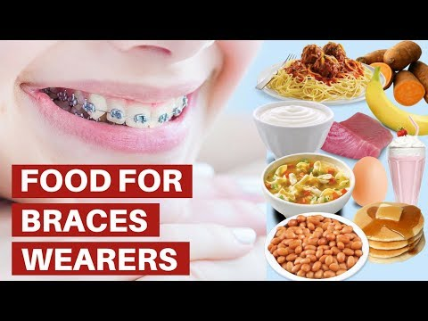 Food For Braces Wearers - The Best Soft Foods To Eat With Braces