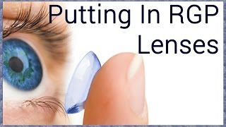 How to Insert Rigid Gas Permeable Contact Lenses thumbnail