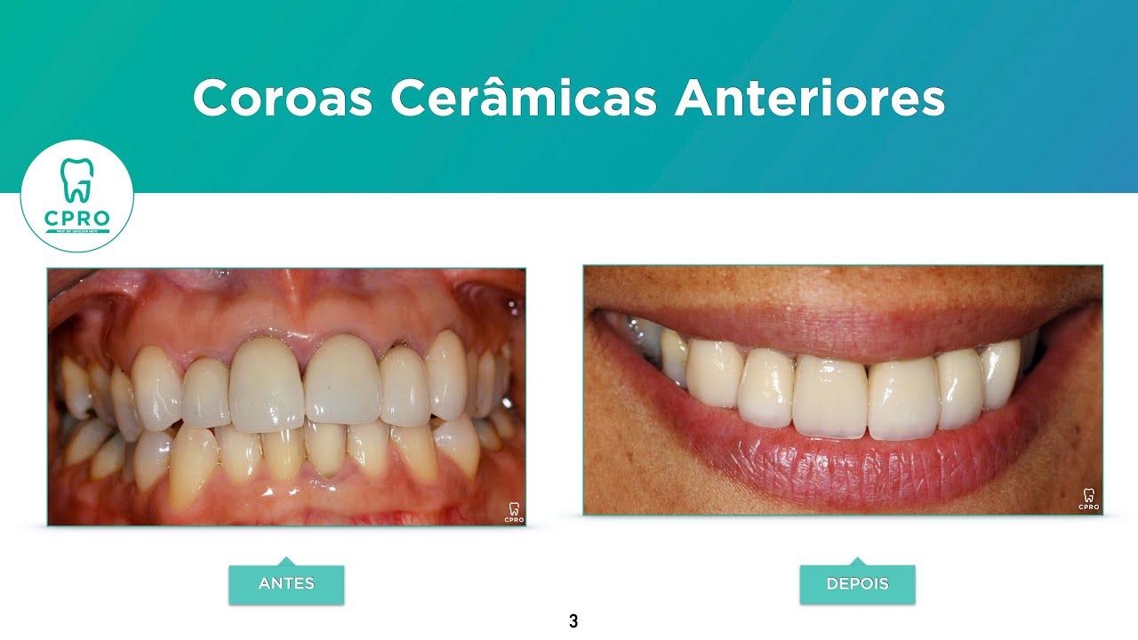 Caso clínico de Coroas Cerâmicas Anteriores.