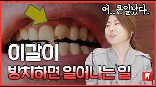 이갈이로 장애까지 ?? 치과의사가 알려주는 이갈이 예방법