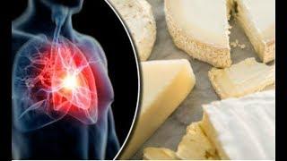 Чтобы вас не сразил Инфаркт или Инсульт, можно есть больше сыра! Вот почему