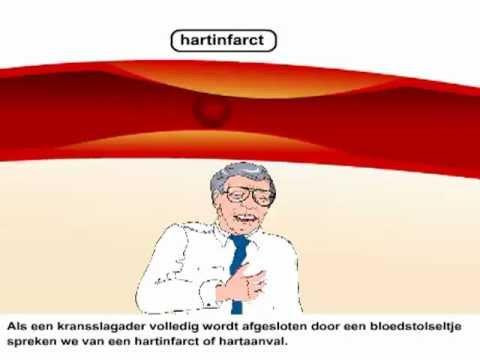 atherosclerose gevolgen