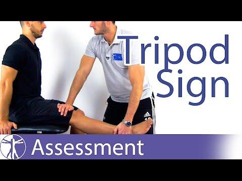 tripod sign test