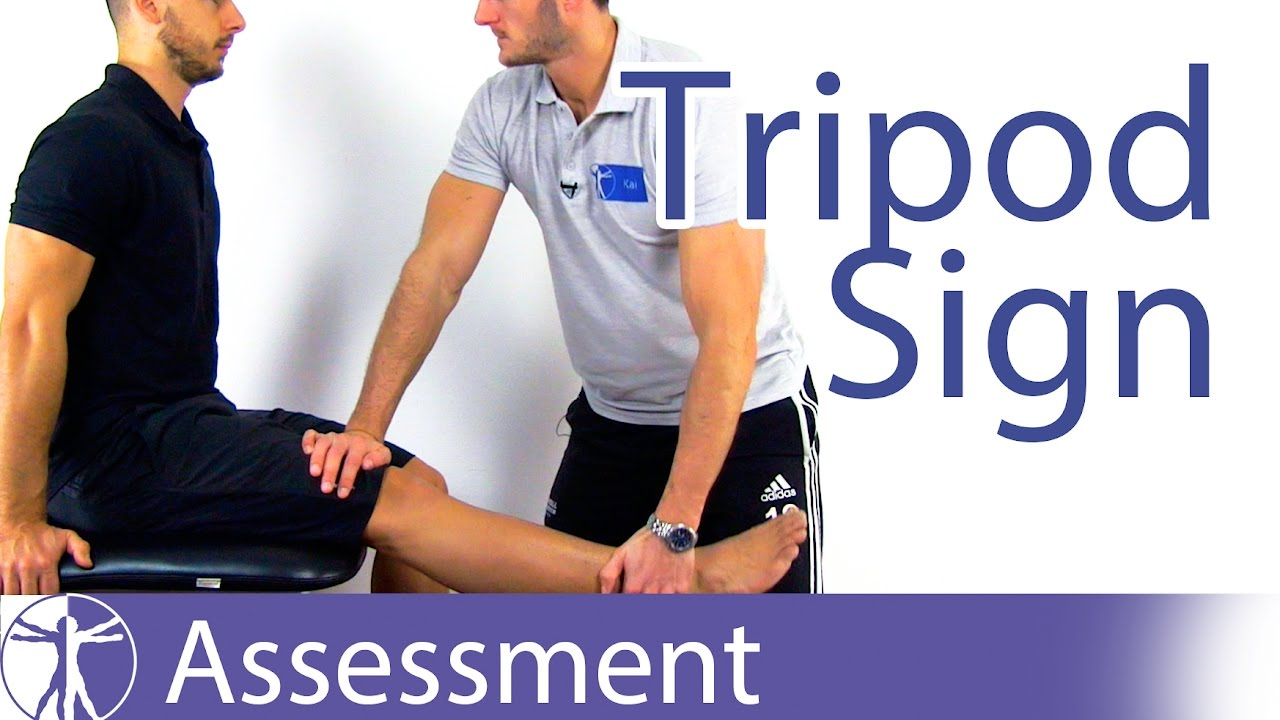Tripod Sign | Hamstring Contractures - YouTube