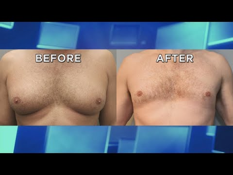 How 'Man Boobs' Can Be Treated Non-Surgically